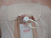 pneumothorax.jpg